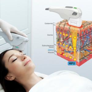 Lifting Facial Sin Cirugia , Con HIFU